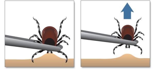 indepartarea căpuşei Cum Ne Protejăm Copiii de Înţepăturile de Insecte