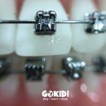 Ortodontia la copii 7 semne avertisment la copil 7 ani gokid