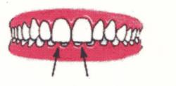 Ortodontia la copii 7 semne avertisment la copilul de 7 ani gokid 2
