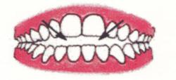 Ortodontia la copii 7 semne avertisment la copilul de 7 ani gokid 3