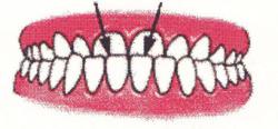 Ortodontia la copii 7 semne avertisment la copilul de 7 ani gokid 4