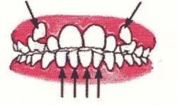 Ortodontia la copii 7 semne avertisment la copilul de 7 ani gokid 5