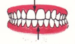 Ortodontia la copii 7 semne avertisment la copilul de 7 ani gokid 6