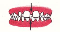 Ortodontia la copii 7 semne avertisment la copilul de 7 ani gokid 7